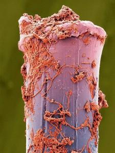 歯ブラシ電子顕微鏡