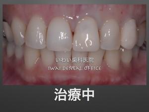 前歯治療中