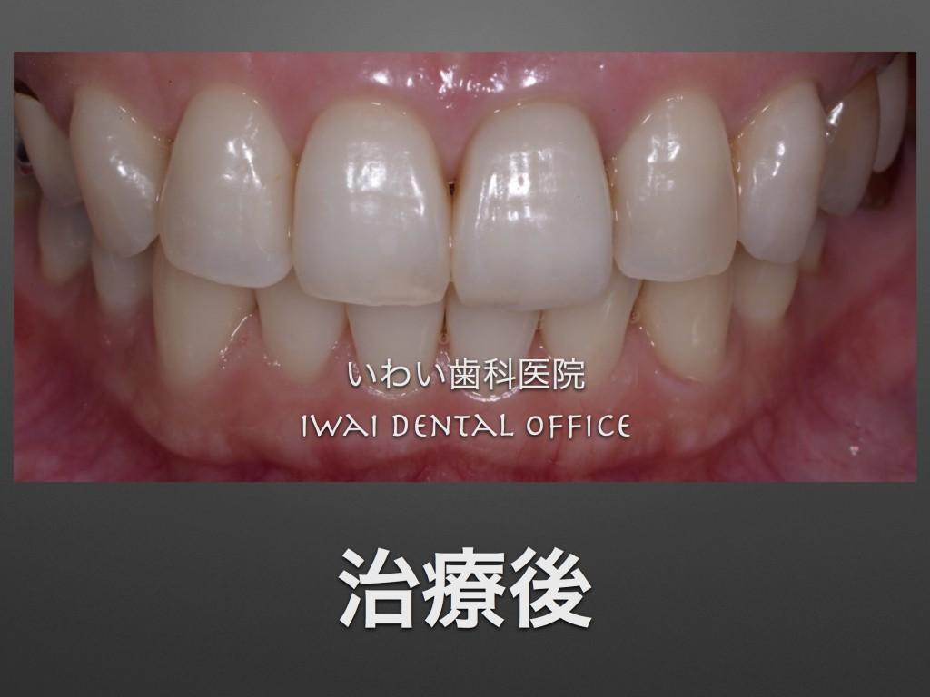 前歯治療後
